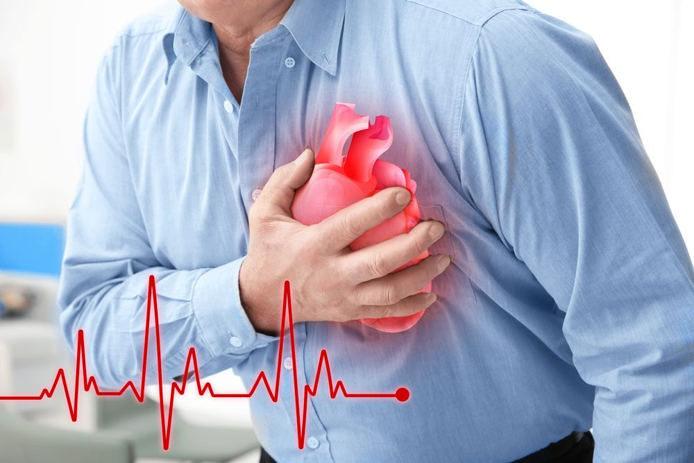 Getting More General Information About Heart Attacks
